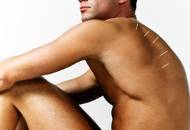 Man with acupuncture needles placed over line of shoulder blade